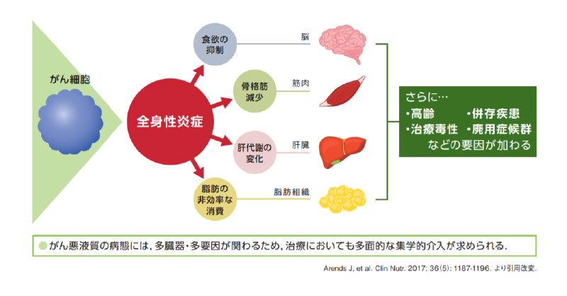 がん悪液質ハンドブック( http://jascc.jp/wp/wp-content/uploads/2019/03/cachexia_handbook-4.pdf )より